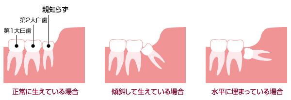 surgery-img